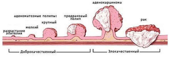 В 95% случаев возникают гиперпластические полипы. В отличие от аденоматозных, они никогда не перерастают в рак