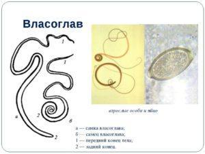 Власоглав (трихоцефалез)