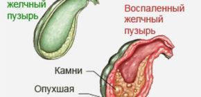 Влияние на печень и желчный пузырь медикаментов