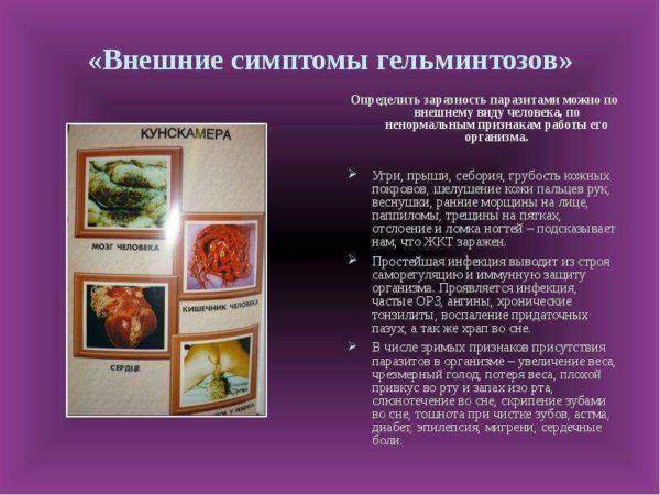 Внешние симптомы гельминтоза