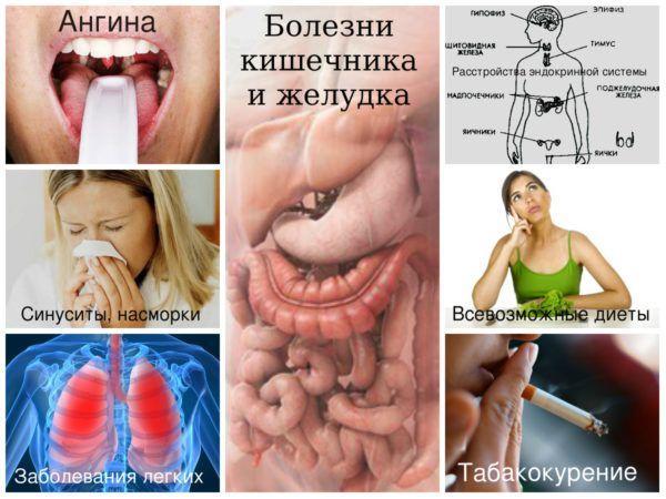 Возможные причины кислого запаха изо рта