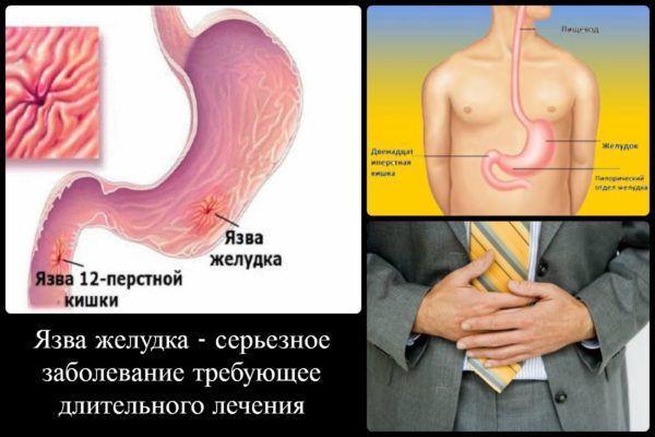 Язва желудка - серьезное заболевание, требующее длительного лечения
