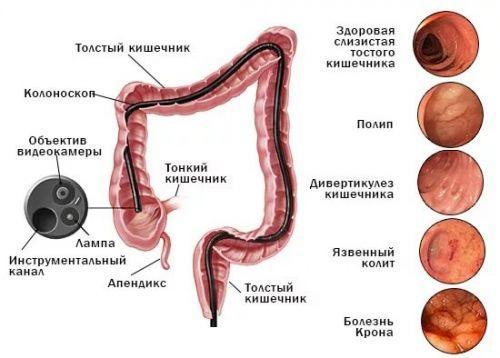 Эндоскопическая картина при различных патологиях
