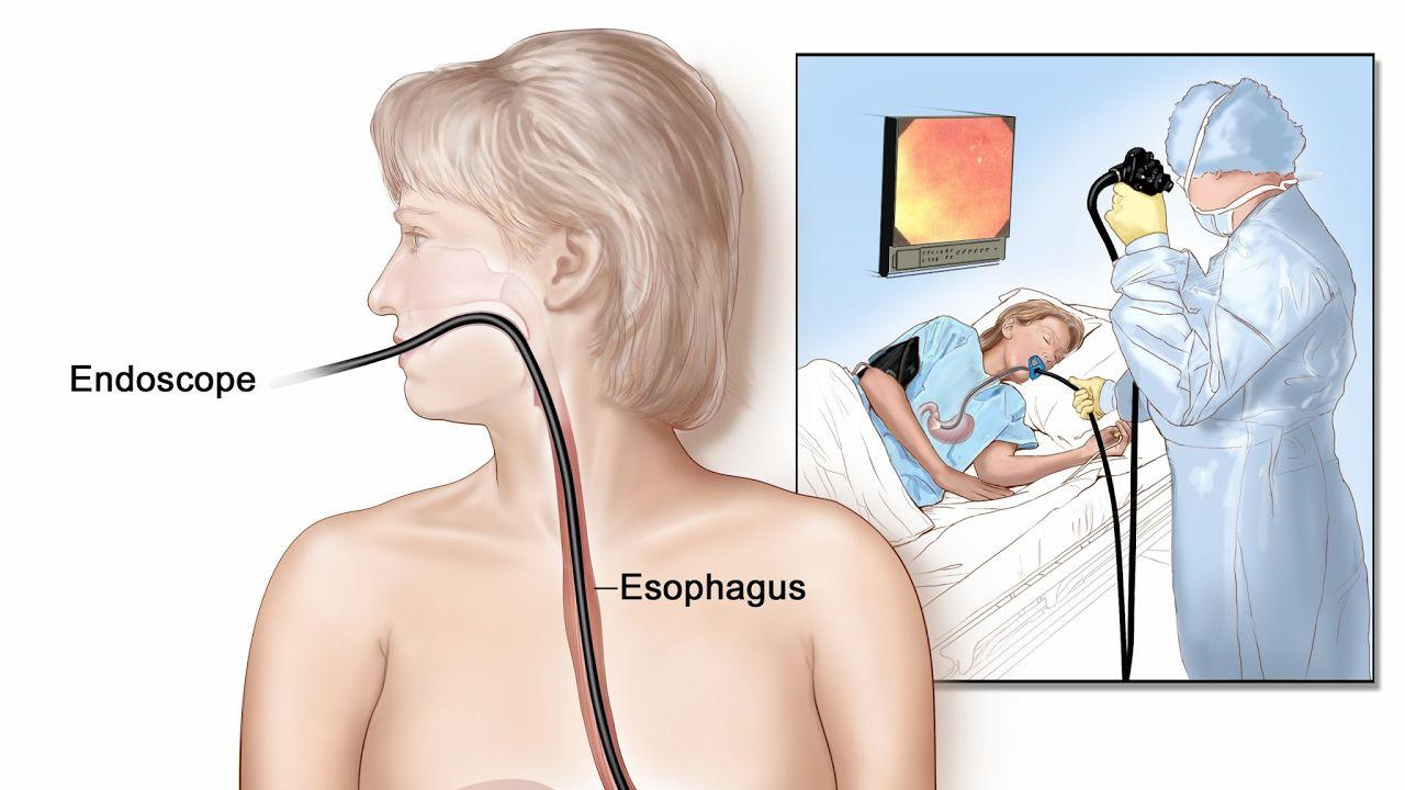 Хронический рефлюкс эзофагит – безобидный, но коварный