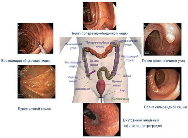 Заболевания, которые можно выявить при проведении ректосигмоскопии