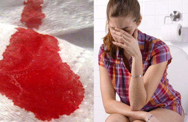 Кровь при опорожнении кишечника: причины