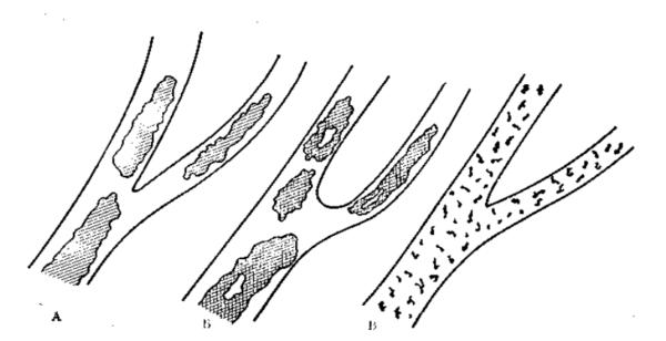 Виджы сладжа: А – классический, Б – декстрановый, В – аморфный