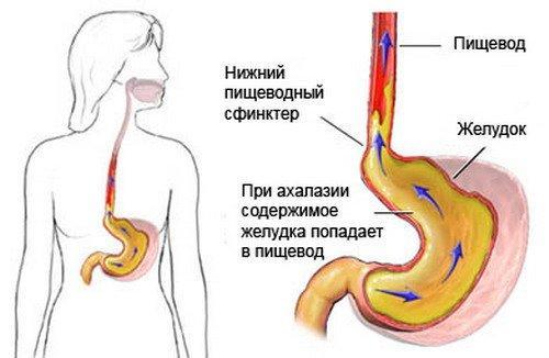 Ожог пищевода