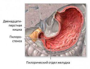 Нарушение проходимости пилорического сфинктера