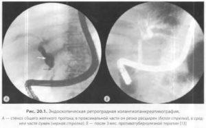 Стенозирующий дуоденальный папиллит