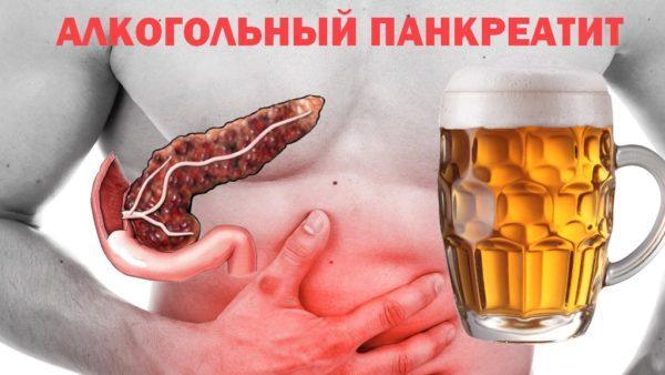 Алкогольный панкреатит