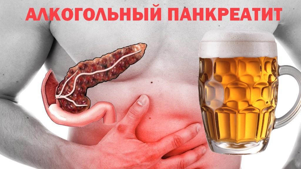 Как восстановить организм после пивного алкоголизма