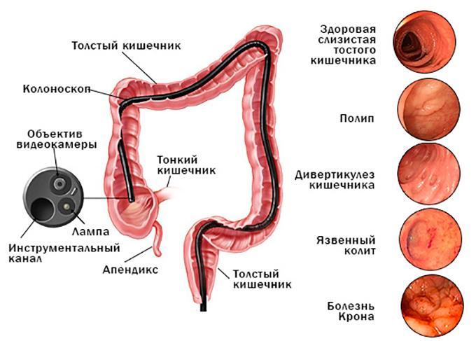 Заболевания, которые можно выявить с помощью колоноскопии