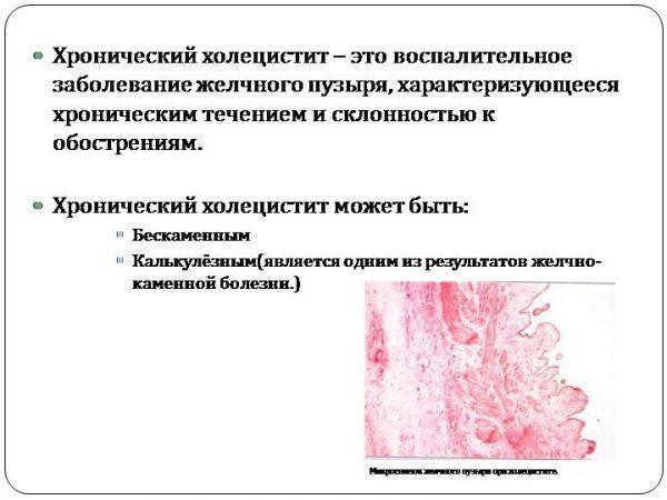 Что такое хронический холецистит и его виды
