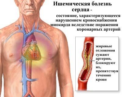 Что такое ишемическая болезнь сердца