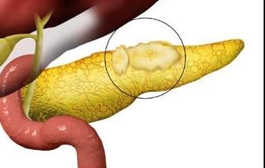 Признаки диффузных изменений поджелудочной железы липоматоз thumbnail