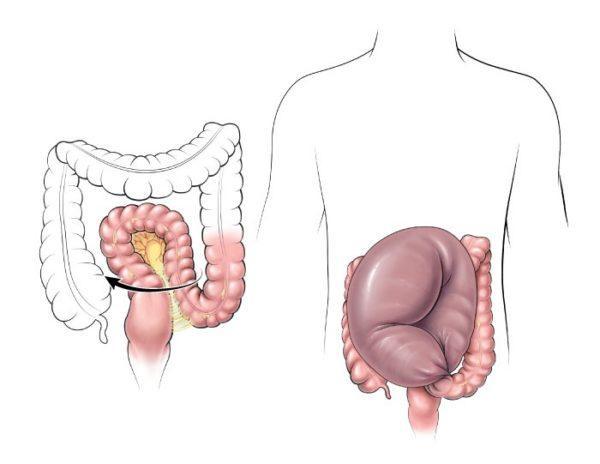 Долихосигма кишечника встречается у почти четверти всего населения земли