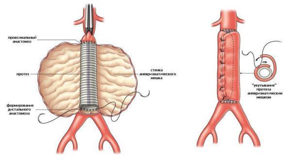 Эндопротезирование аневризматического мешка