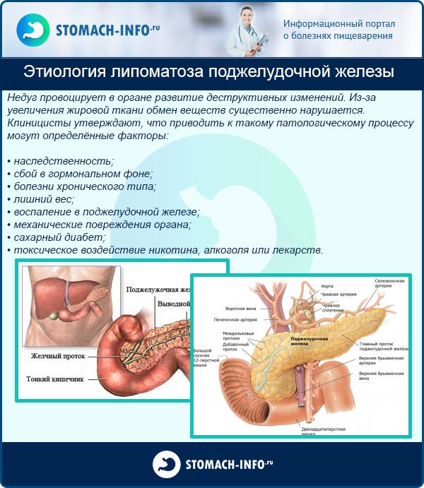 Этиология липоматоза поджелудочной железы
