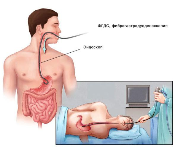 ФГДС (фиброгастродуоденоскопия)