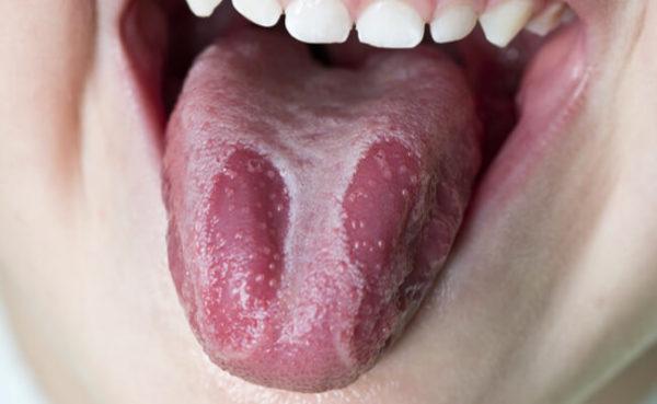 Фото пациента с десквамативным глосситом