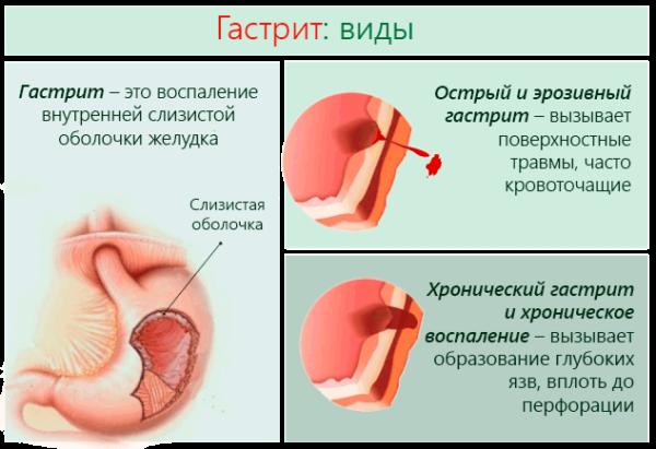 Гастрит – это воспаление внутренней слизистой оболочки желудка