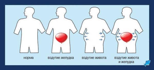 Газы в желудке и кишечнике