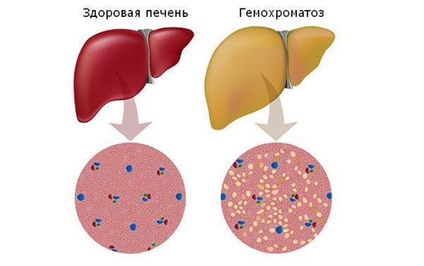 Гемохроматоз печени