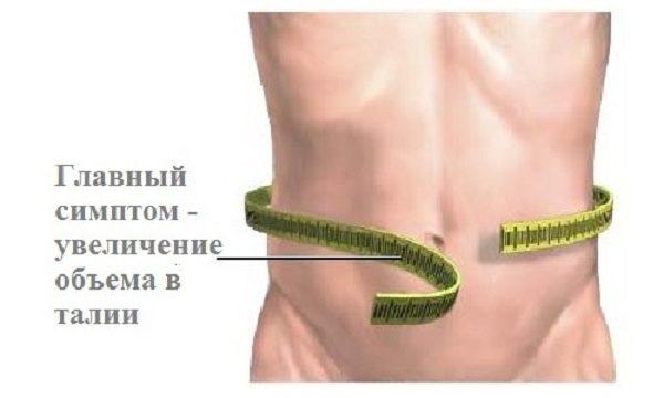 Главный симптом - увеличение объема в талии