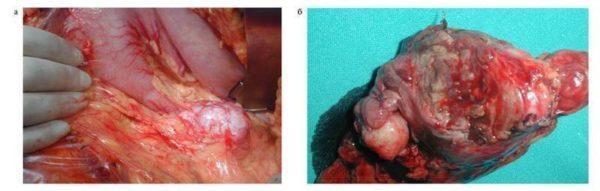 Глюкагонома поджелудочной железы