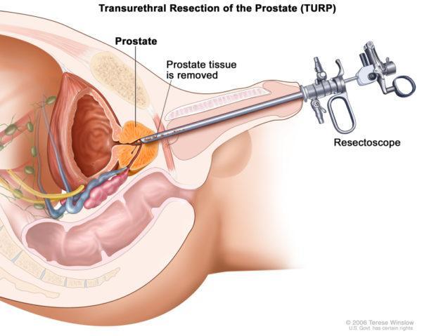 Хирургическое лечение аденомы простаты