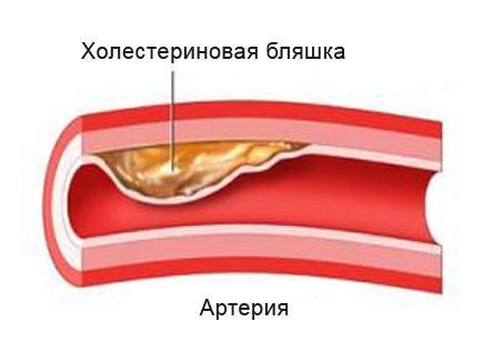 Холестериновая бляшка в артерии