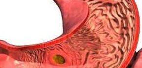 Инфекционный гастрит