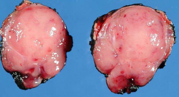 Инсулинома после удаления