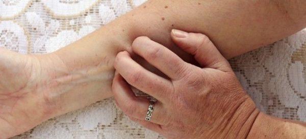 Изменения кожных покровов при панкреатите