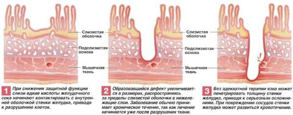 Как формируется язва желудка