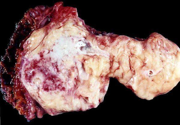 Карцинома поджелудочной железы