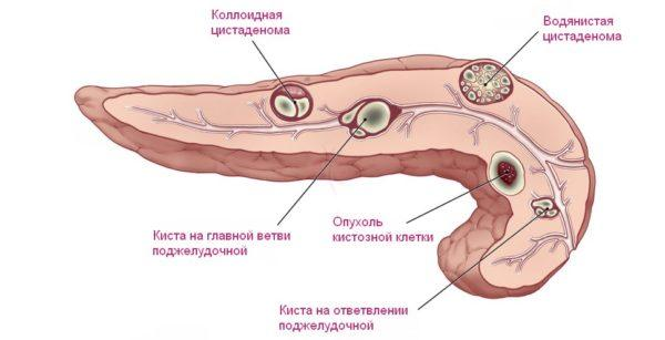 Киста поджелудочной железы и её виды