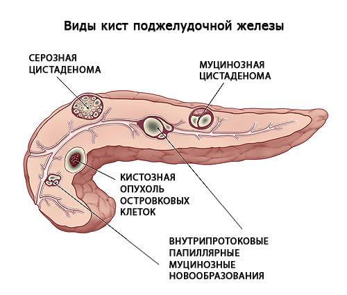 Кистозные опухоли поджелудочной железы