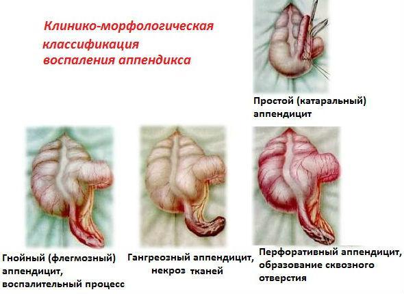 Классификация воспаления аппендикса