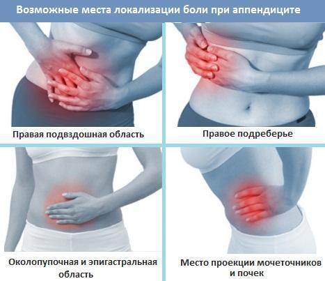 Места локализации боли при воспалении аппендикса
