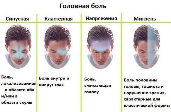 Как понять что у тебя мигрень