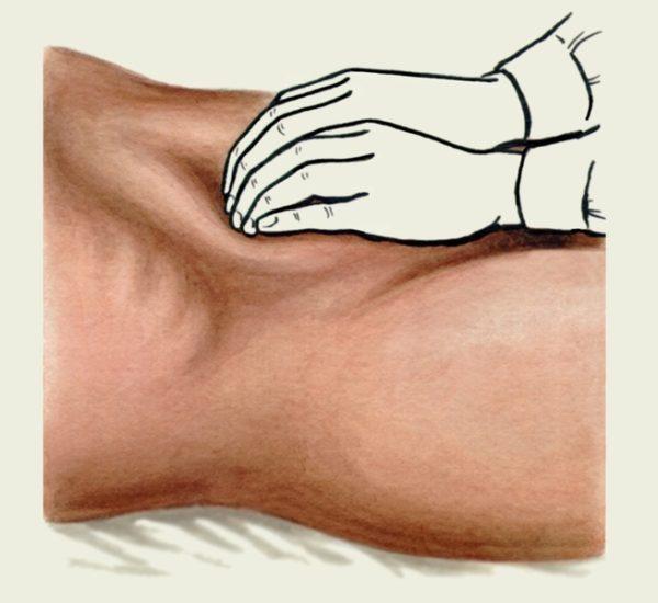 Мышцы живота сжимаются при пальпации