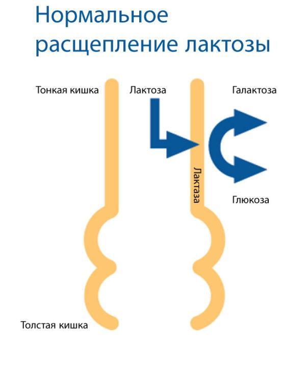 Непереносимость лактозы и ее легкая форма гиполактазия - это нарушение обмена веществ, причиной которого является отсутствие лактазы