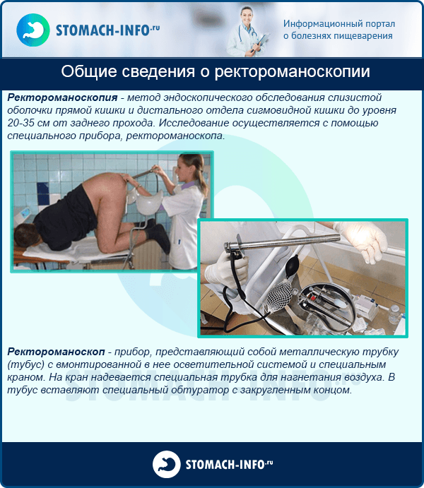 Общие сведения о ректороманоскопии