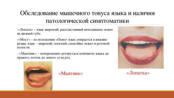 Обследование мышечного тонуса языка и наличия патологической симптоматики