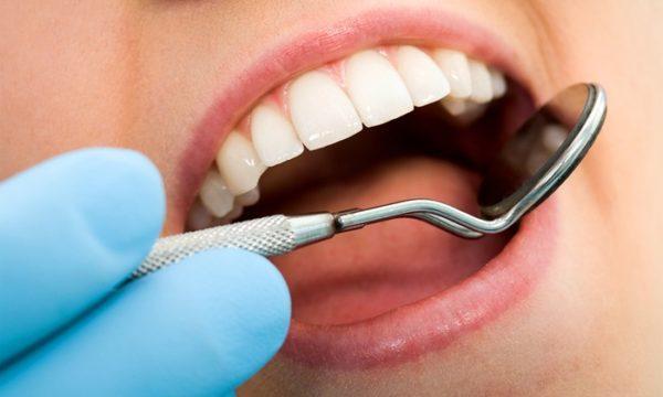 Обследование у стоматолога при появлении желтого налета