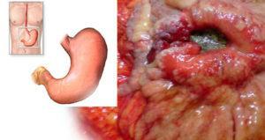 Онкологические заболевания желудка и кишечника