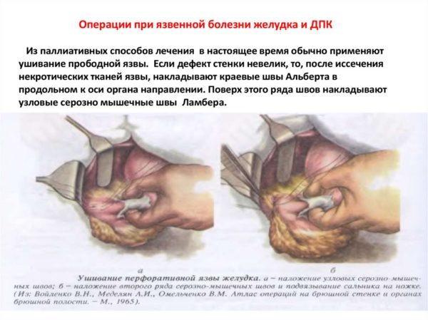 Операции при язвенной болезни желудка и ДПК