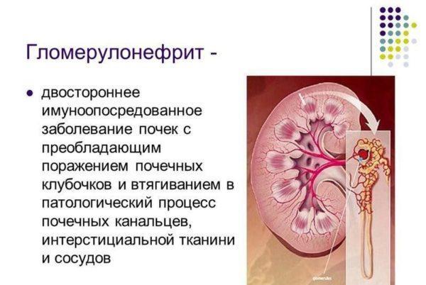 Определение гломерулонефрита